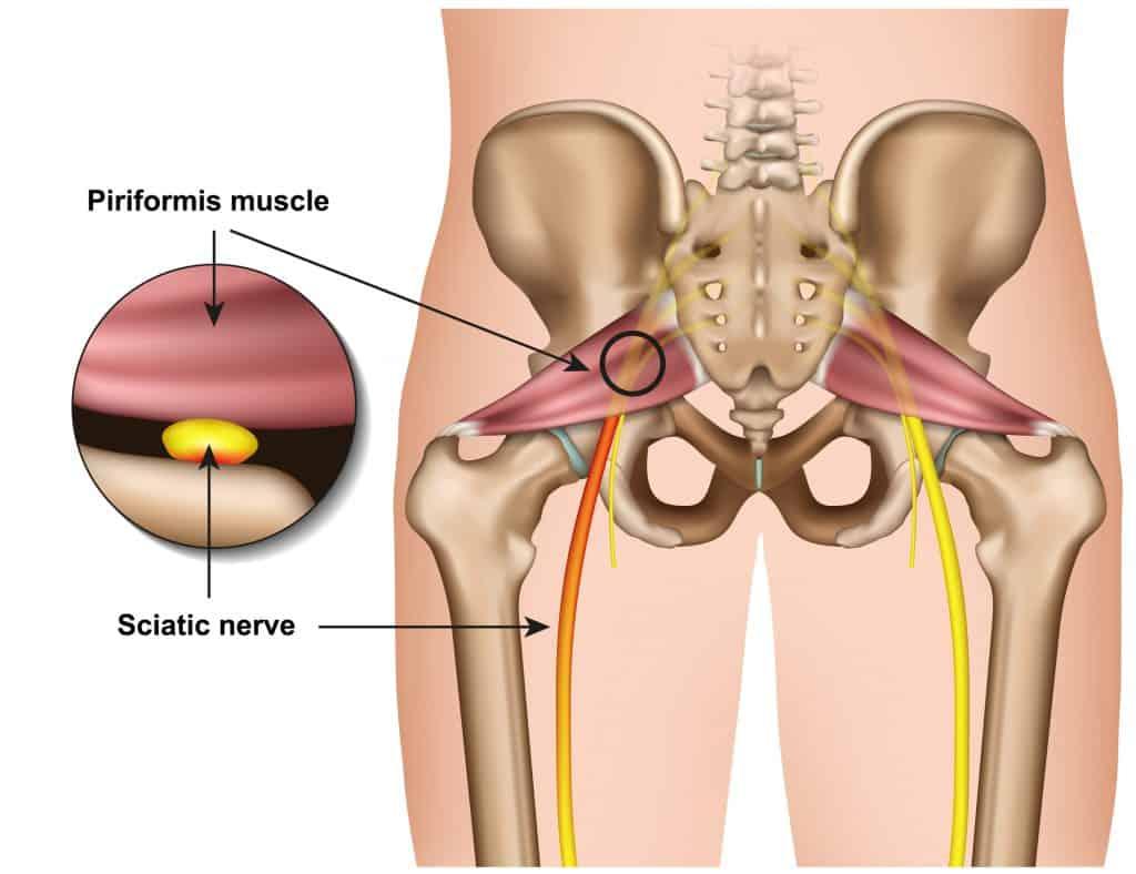 cartoon image of the sciatic nerve and piriformis syndrome
