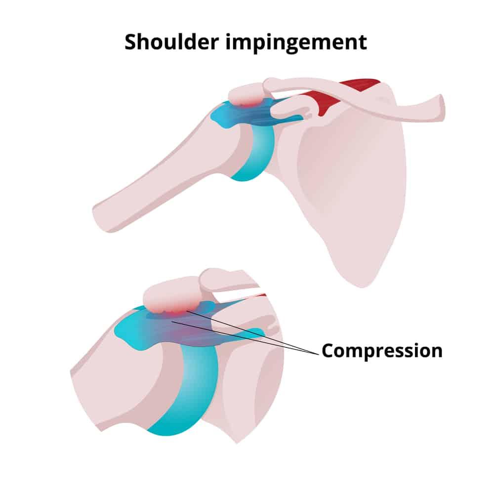 vector drawing of shoulder impingement pain