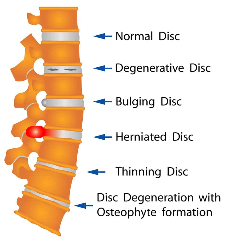 illustrating of different types of spinal disc injuries